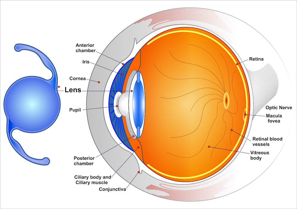 Diagram of how Intraocular Lenses (IOLs) work